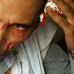 Jeune saigne de la tête – marche opposition ce 16 juillet 2017